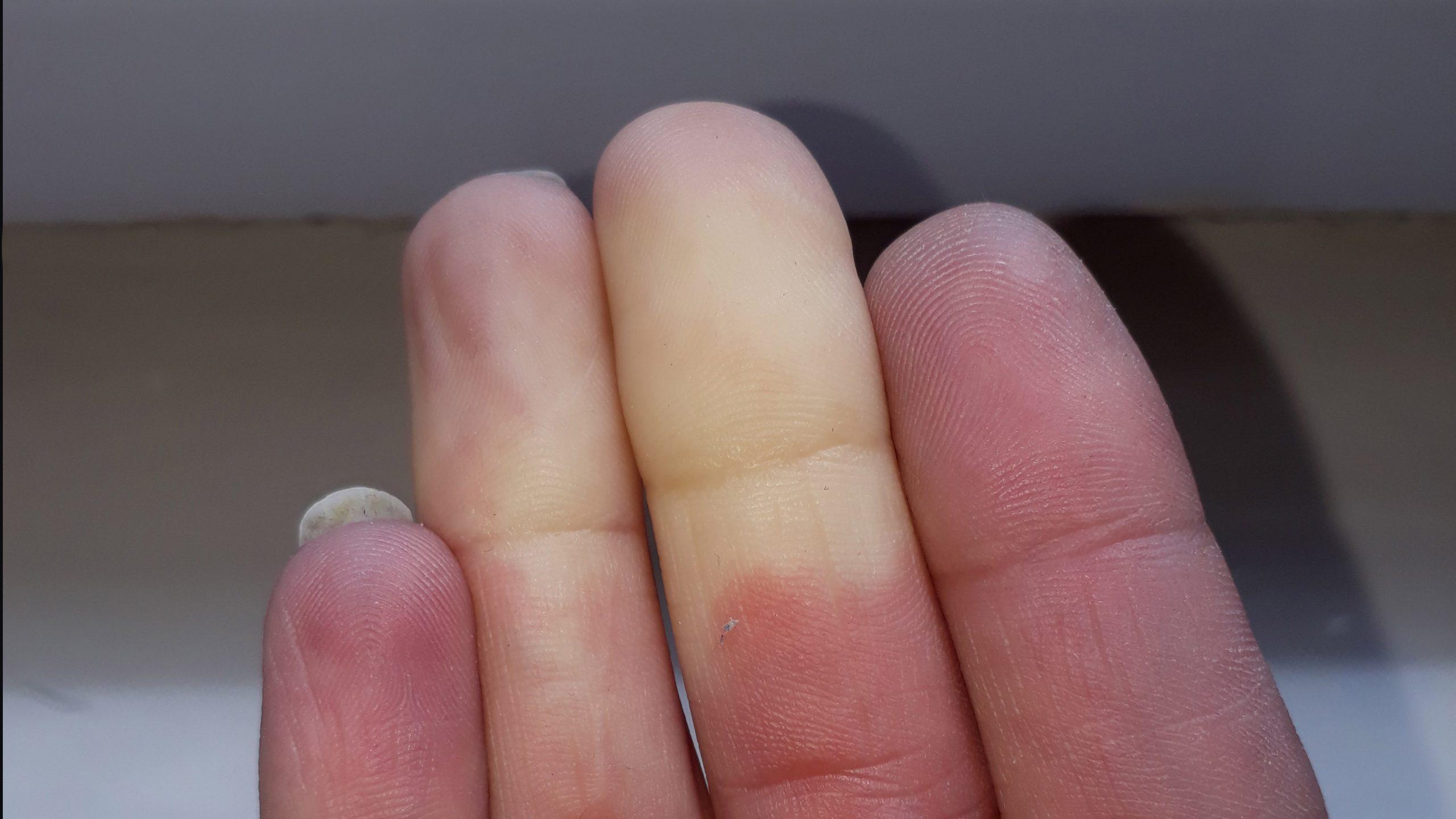 raynauds hand